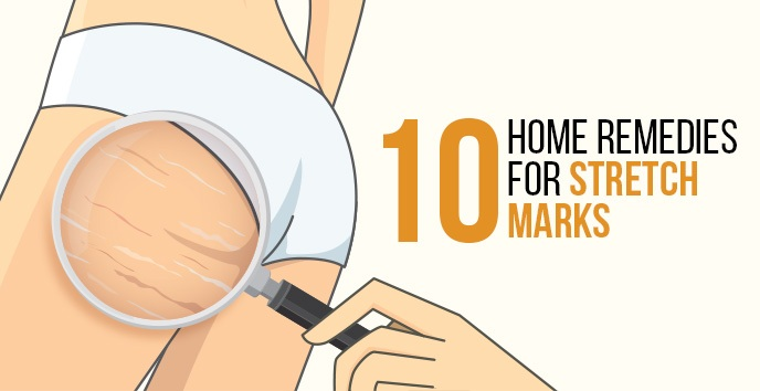 How to Get Rid of Stretch Marks Fast Naturally: 10 Home Remedies
